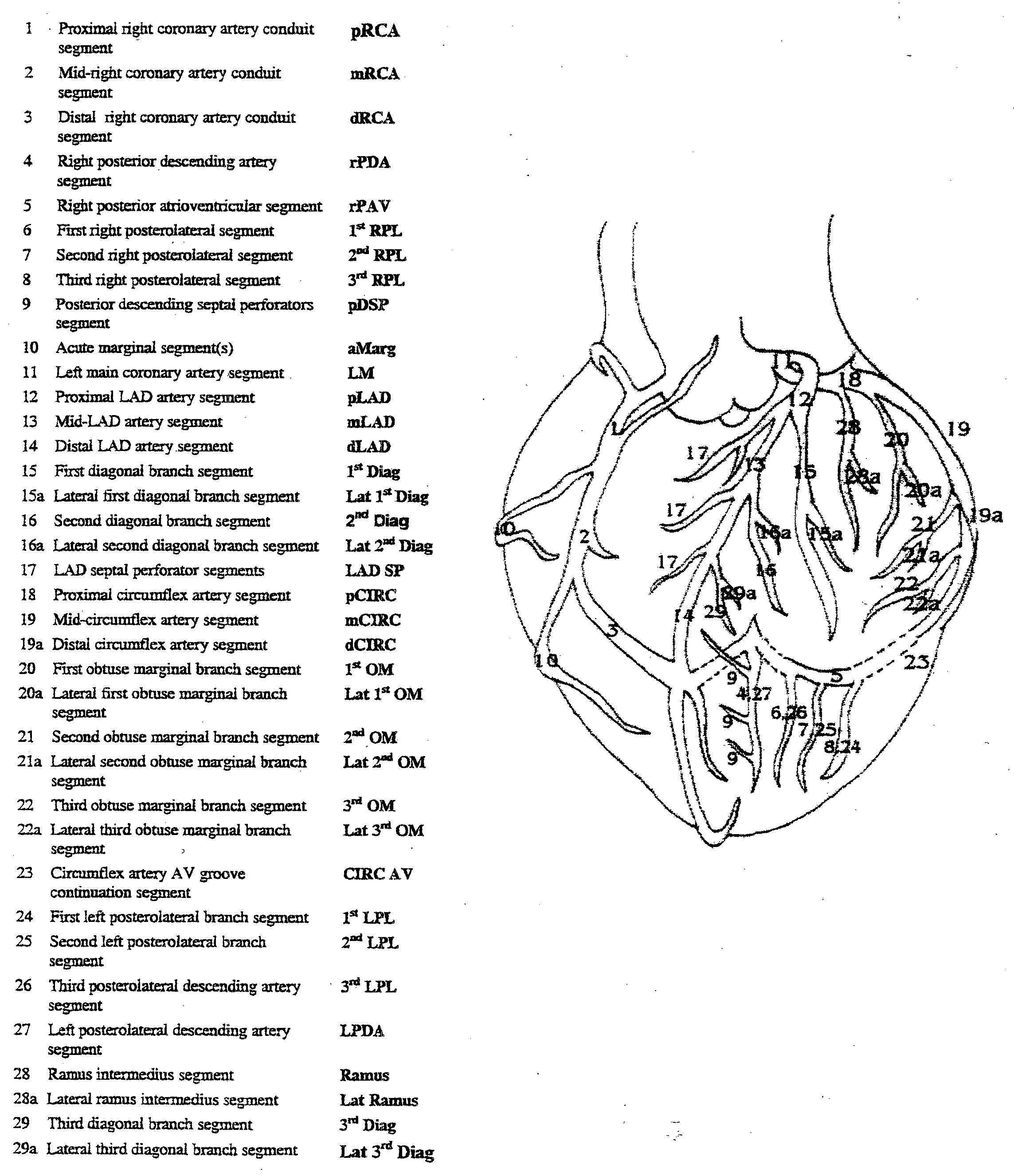 Acute Coronary Syndromes (ACS) - Crashing Patient
