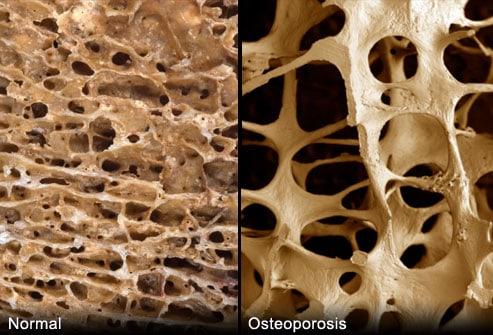 Bone Suckers and Bone Builders|Craving Something Healthy