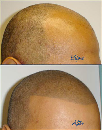 a tattoo for balding heads my findings on body art and modification