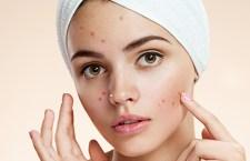 Acne pode ser confundida com outras doenças de pele; saiba a quais sinais ficar atento