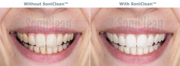 SoniClean Before After
