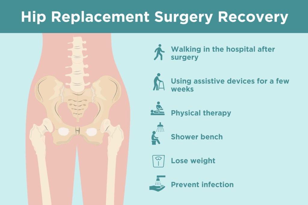 Hip Replacement Surgery Methods
