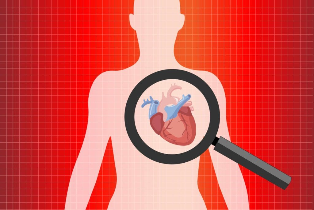 COVID19 Attacks Arteries In Heart And Leads To Problems