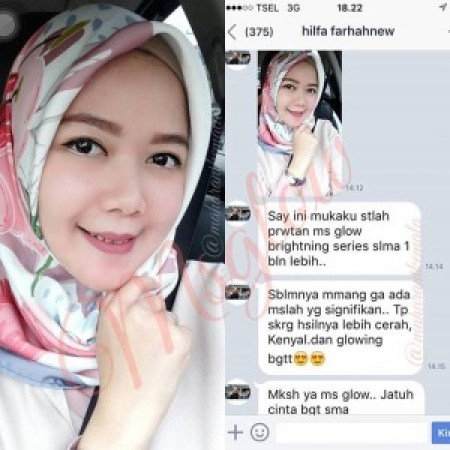 testimoni ms glow brightening series