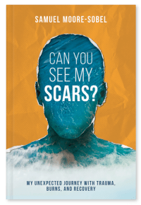 Book Cover for Can You See My Scars