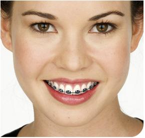 tustin-girl-with-braces-smiling