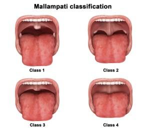 mallampati-classification-arch-development