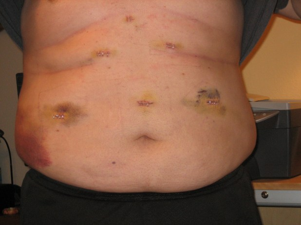 Image result for gastric bypass complications after year