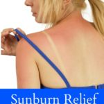 Sunburn Relief Home Remedies