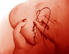 mending-broken-heart
