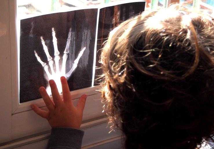 Mano de niño al lado de radiografia de mano en la ventana