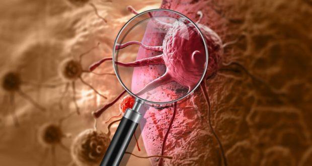 Профилактика раковых заболеваний. Несколько простых советов, которые могут спасти жизнь
