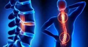 Проблемы с позвоночником? Помогут специалисты ортопедической клиники в Мюнхене