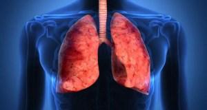 Тревожные цифры: в Крыму все больше случаев внебольничной пневмонии