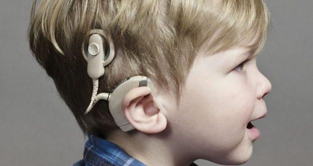 В Севастополе расширен перечень комплектующих слуховых имплантов, подлежащих компенсации