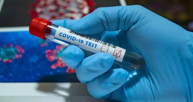 В Крыму медики будут использовать экспресс-тесты на антитела к коронавирусу