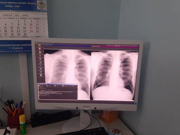 «Неделя лёгочного здоровья» стартовала в Севастополе