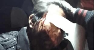 Navajean a taxista durante un asalto en Tizayuca