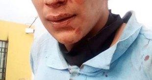 Retienen y golpean a presunto delincuente en Haciendas de Tizayuca