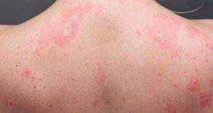 Conoce las señales en la piel de personas con coronavirus