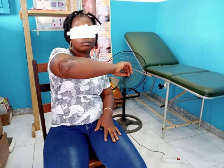 Dame Dolé Woundigui Solange, 45 ans, native de Gnankanzou dans la sous-préfecture de Banneu, est à ce jour guérie de l'ulcère de buruli.