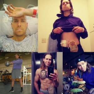Michael Simmons Ostomy collage