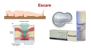 Escarele pot fi vindecate cu Flamozil