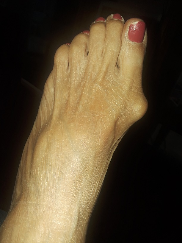 Some people have bunions.