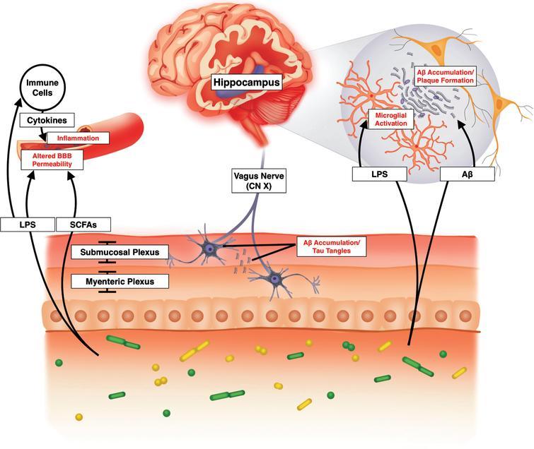 Microbiome Optimization Initiative