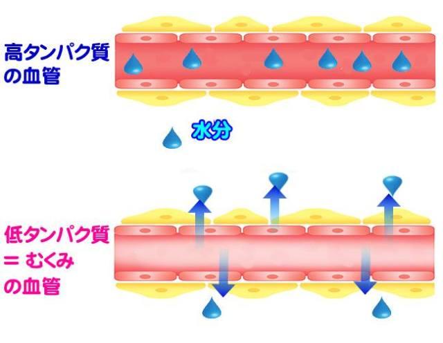 CS60大阪(なんば)の施術効果とヨガとダンスと浮腫の原因がダイエット?
