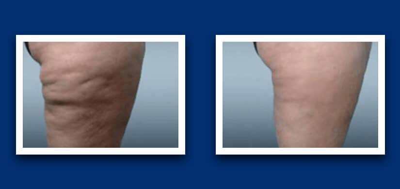 Leg difference before and after cavitation treatment