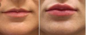 Lips treatment Exeter