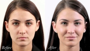 Cheek enhancement treatment Exeter