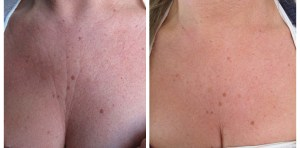 decolletage treatment Exeter