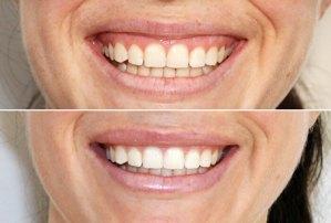 gummy smile treatment exeter
