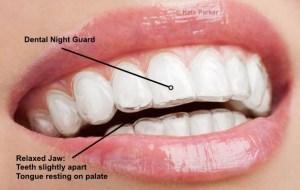 teeth grinding treatment Exeter
