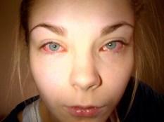 Salla's allergic reaction