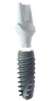 Dental Implants Information | A B Dental Implants
