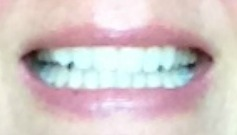 Dazzling Teeth Feature Image