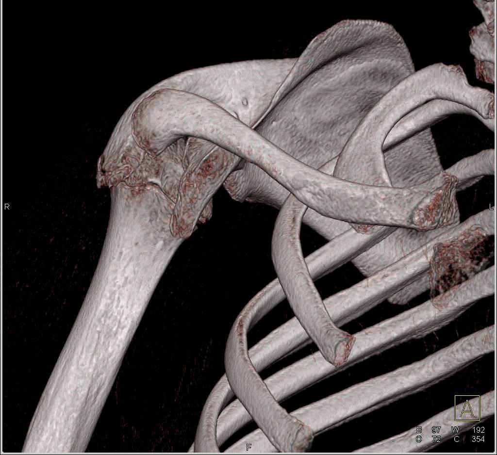 Dysplastic Shoulder With Deformed Glenoid And Humerus Head