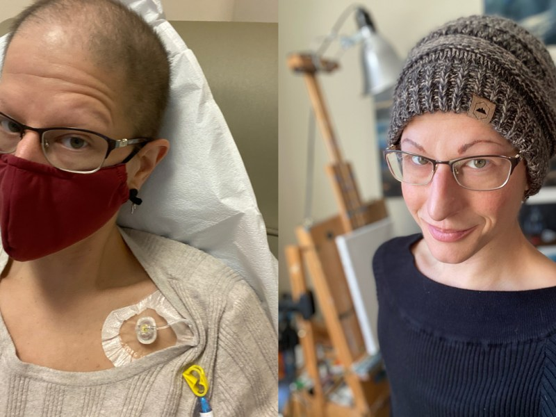 Two photos of Shana Haislip, a cancer patient