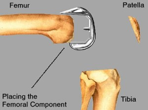 Total Knee Replacement - Placing the Femoral Component