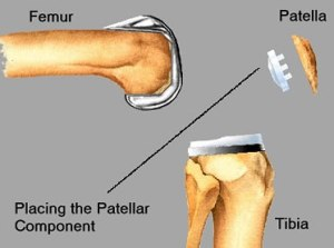 Total Knee Replacement - Placing the Patellar Component
