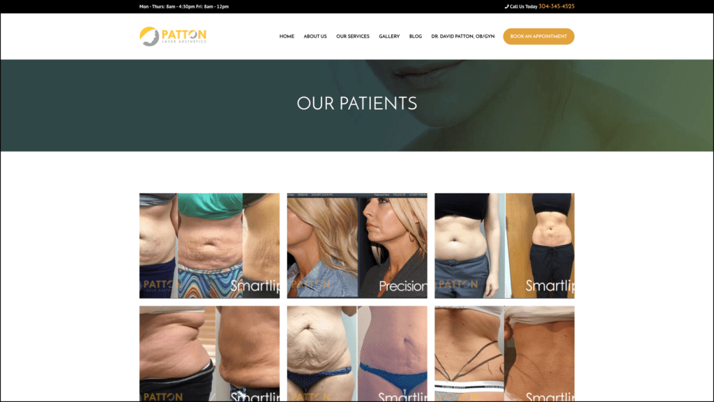 Patton Laser Aesthetics our patients web design by cucumber & company