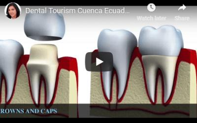 Dental Tourism Cuenca Ecuador (Ecuador Dental Implants)