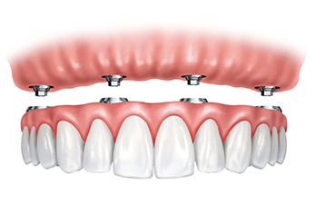 Dental Implants: All-on-4, All-on-6, All-on-8