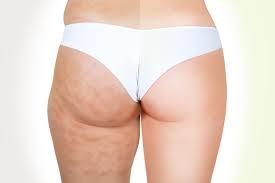 bad-cellulite-1