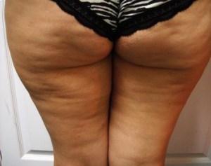 bad-cellulite