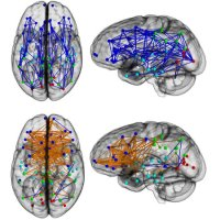 New Brain Study Illustrates Gender Differences