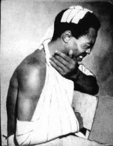Fela Anikulapo Kuti in bandages after being beat up by military officers.